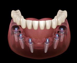 Full Dental Implant